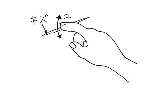 爪で触ってキズの深さを確認する